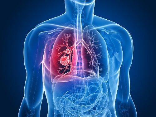 La Seguridad Social somete a consulta pública previa, la inclusión del cáncer de pulmón por exposición al sílice como enfermedad profesional